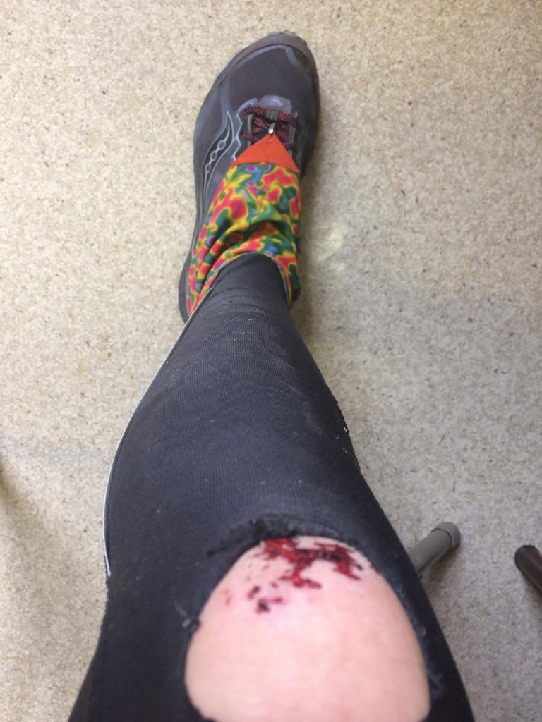 I skinned my knee!